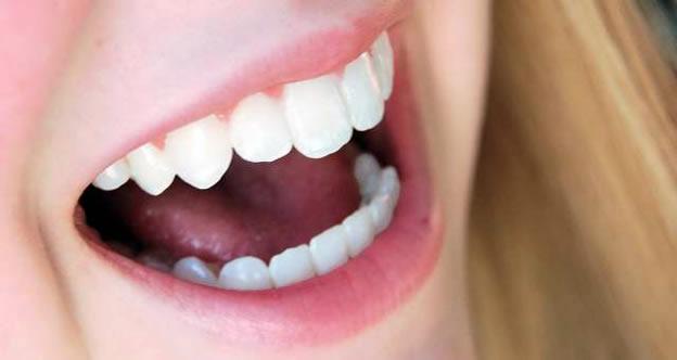Sorriso com dentes brancos